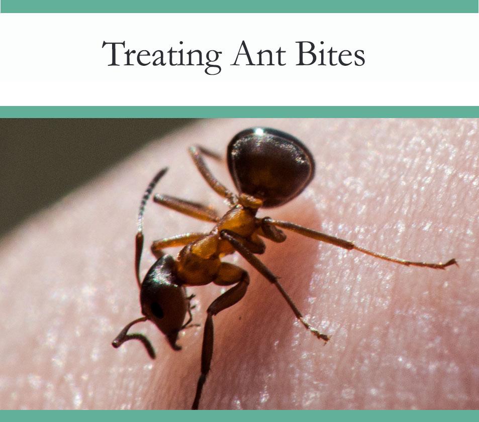 Howto treat ant bites