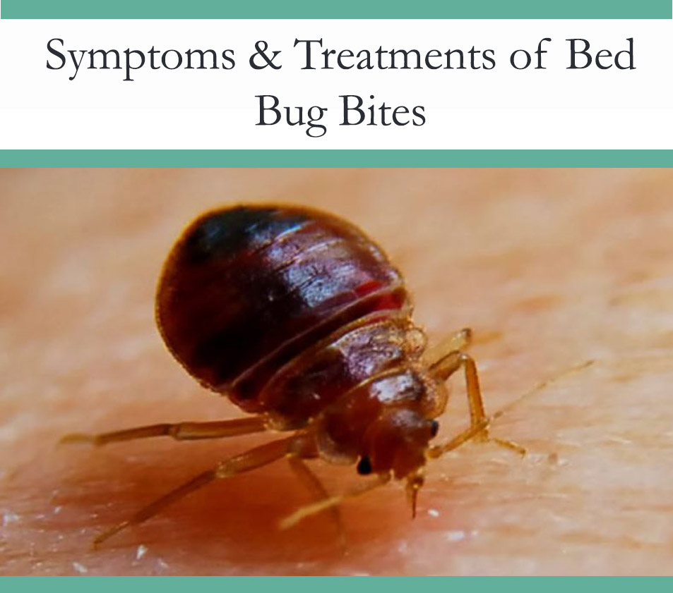 Bed Bug Bites Symptoms and Treatment