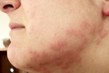 bed bug bits in human face