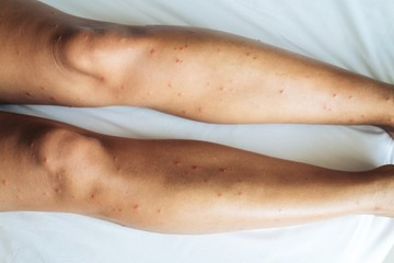 Female legs with many red spot and scar from sand fly bites